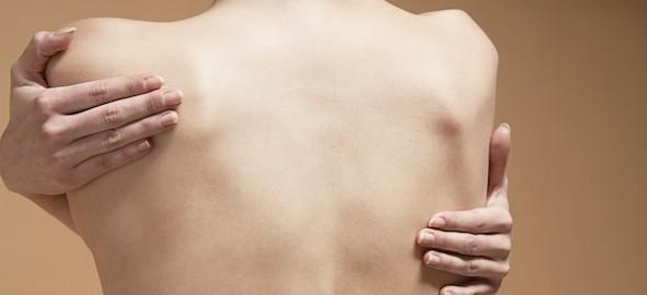 Hiperhidrosis con Botox, toxina botulínica, eliminación de sudoración excesiva Alicante